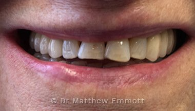 Dental Implants Oxfordshire