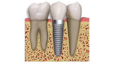 Dental Implants in Oxfordshire
